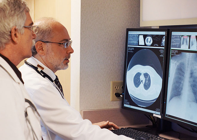 Pulmonary Nodule - CT scan - Minnesota Lung Center